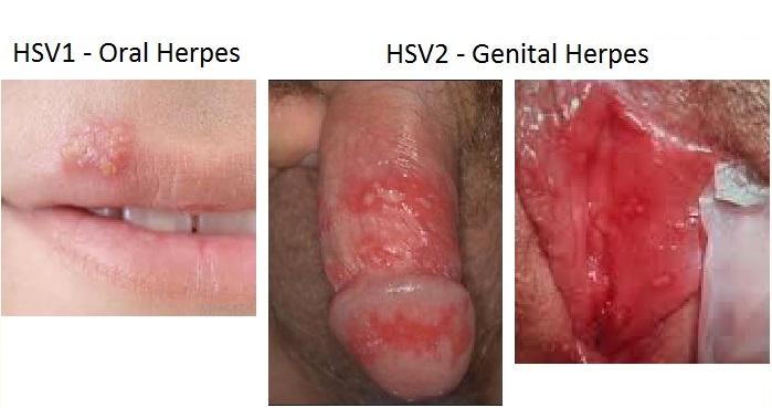 Milf anal genital herpes on men sex
